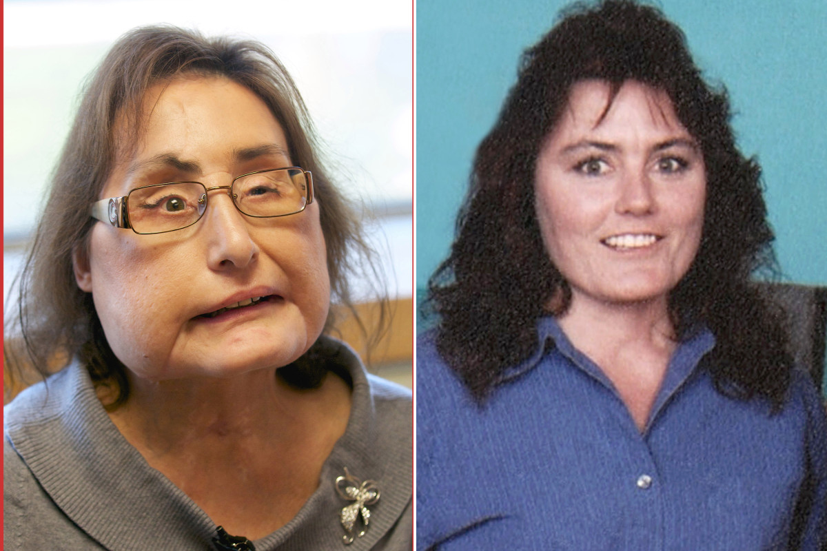 Connie Culp, who got first US face transplant, dead at 57