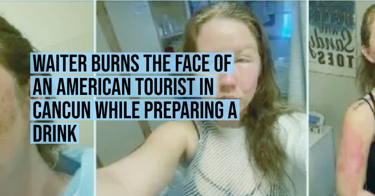 Waiter burns the face of an American tourist in Cancun while preparing a drink